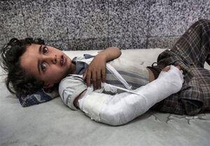 هر ۵ دقیقه یک کودک یمنی میمیرد!