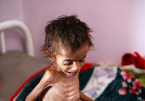 با پول پاتریوت چند کودک یمنی را میتوان نجات داد؟