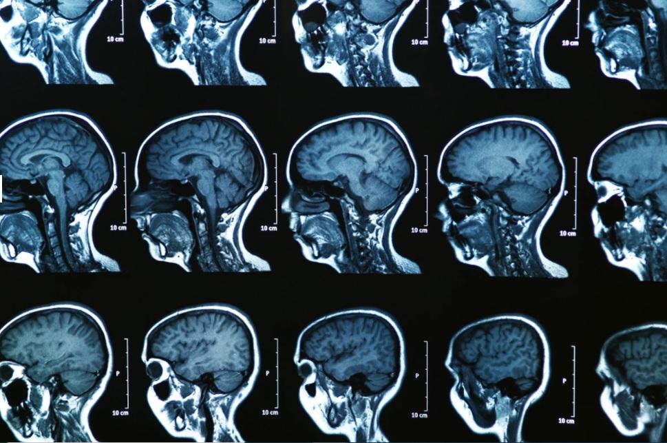 محققان با کمک هوش مصنوعی سه زیرگروه جدید بیماری «ام اس» را شناسایی کردند